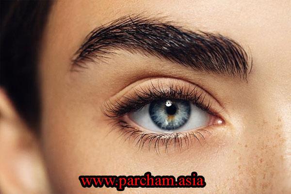 زالو درمانی برای تورم چشم